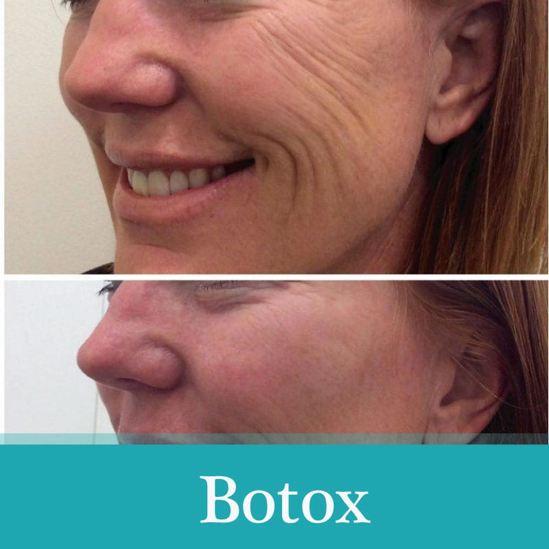 botox treatment before-after woman Aesthetics and medical services in Chicago