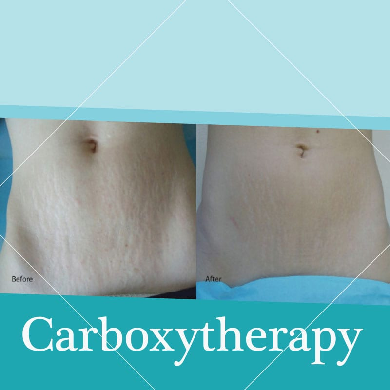 carboxytherapy treament before-after