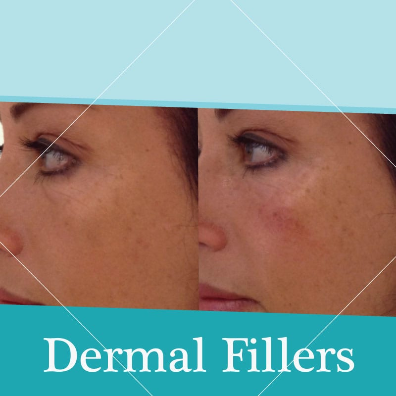 dermal fillers treatment before-after
