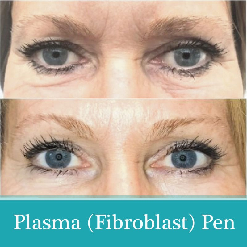 plasma treatment before-after