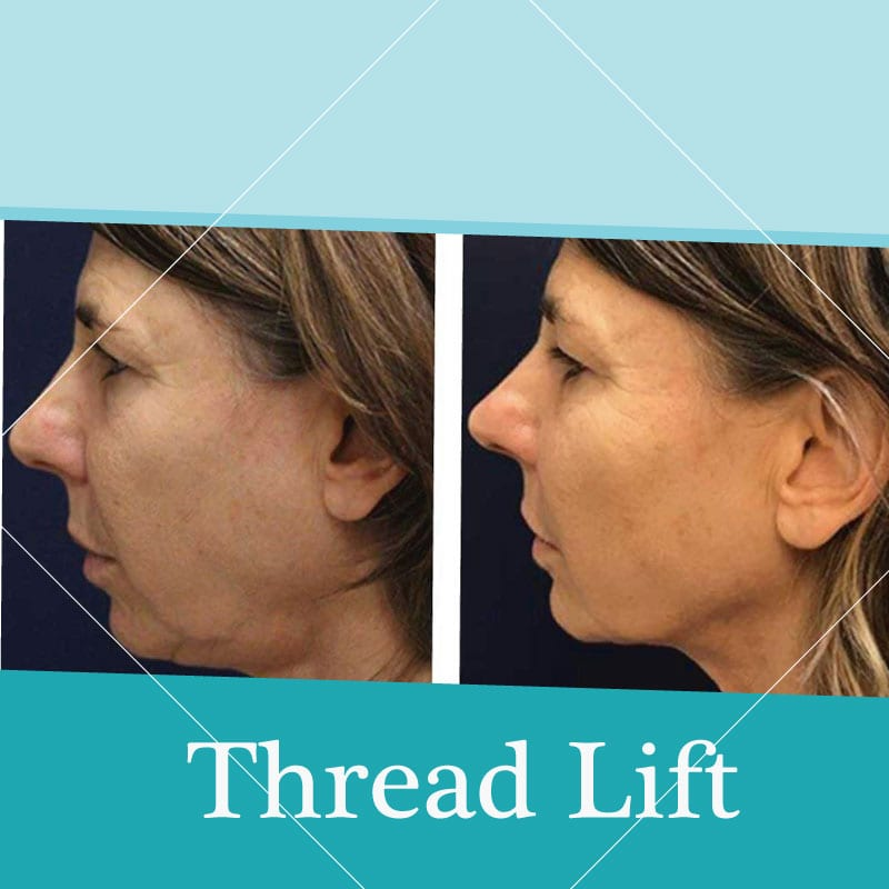 thread lift treatment before-after