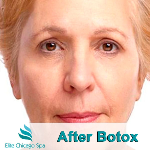 woman after botox