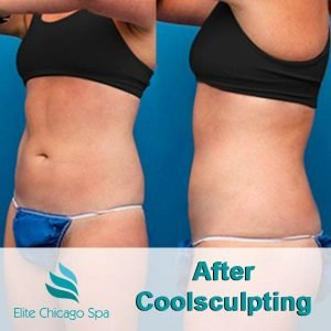 woman after coolsculpting