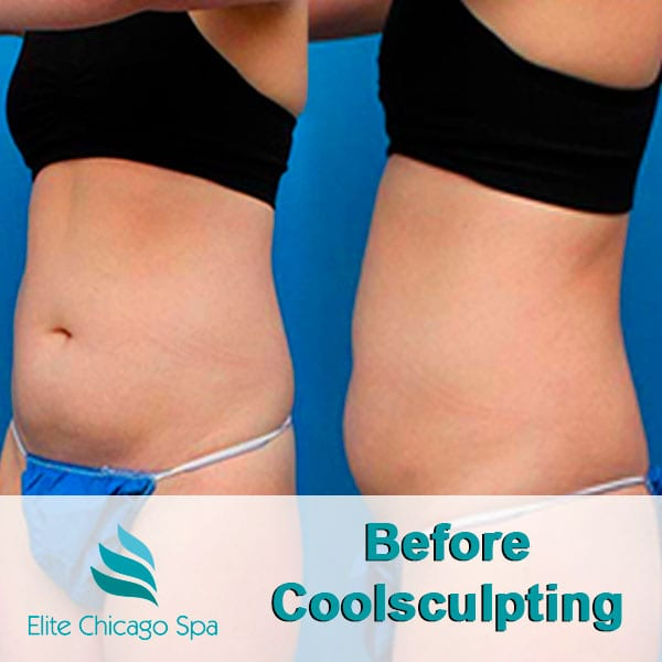 woman before coolsculpting