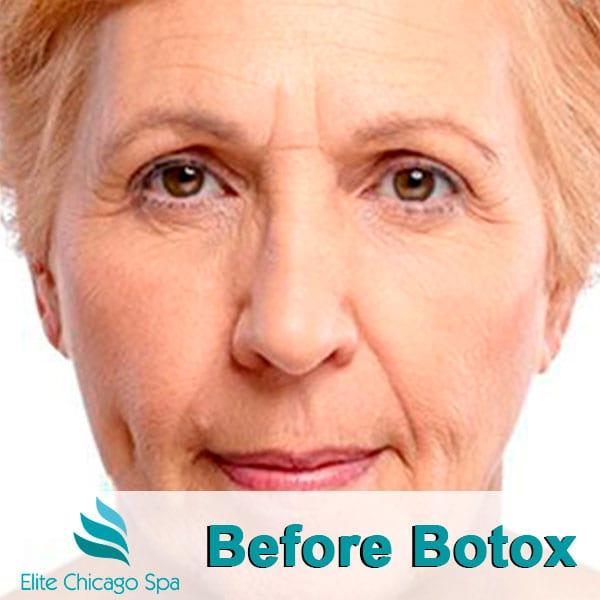 woman before botox