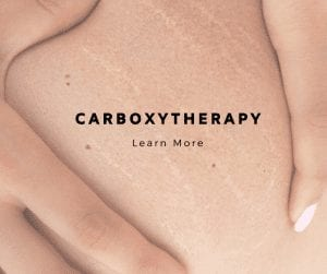 Carboxytherapy, an excellent treatment for cellulites and more
