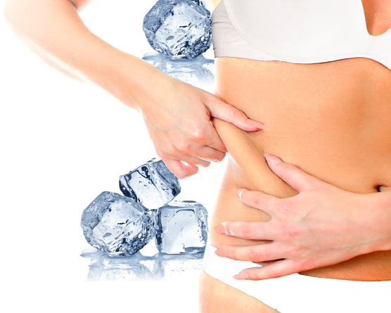 Cryolipolysis in chicago