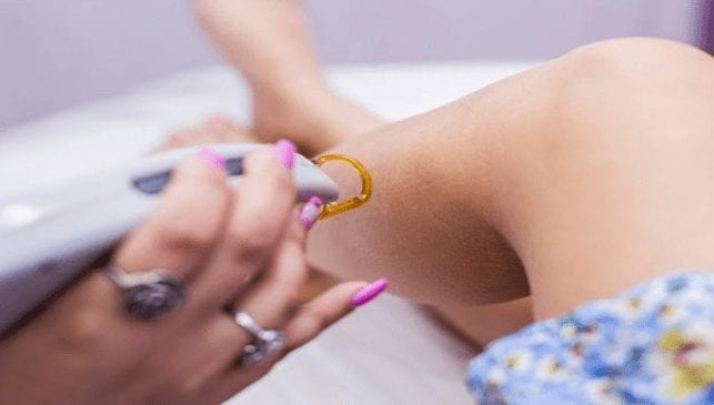 What you need to know about the best laser hair removal Chicago