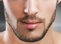 can men get facial laser hair removal?