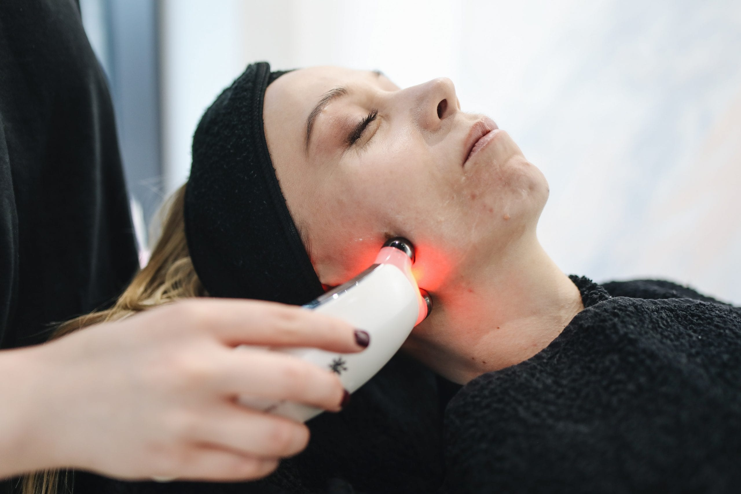 Which kind of laser beam is best for hair removal?