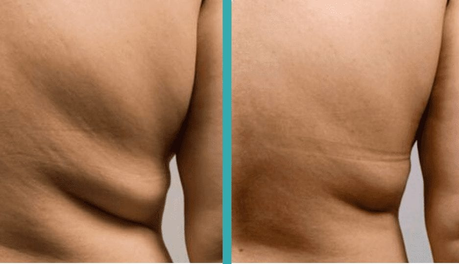 Best CoolSculpting chicago for men