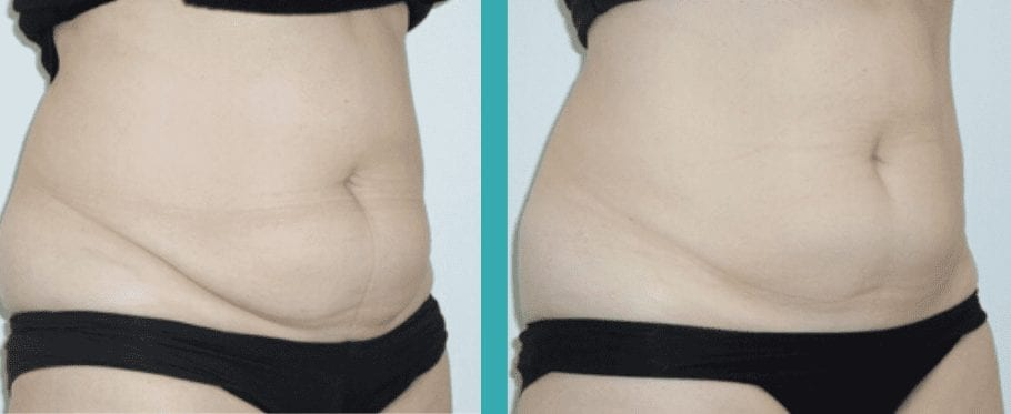 Coolsculpting Chicago Before and After
