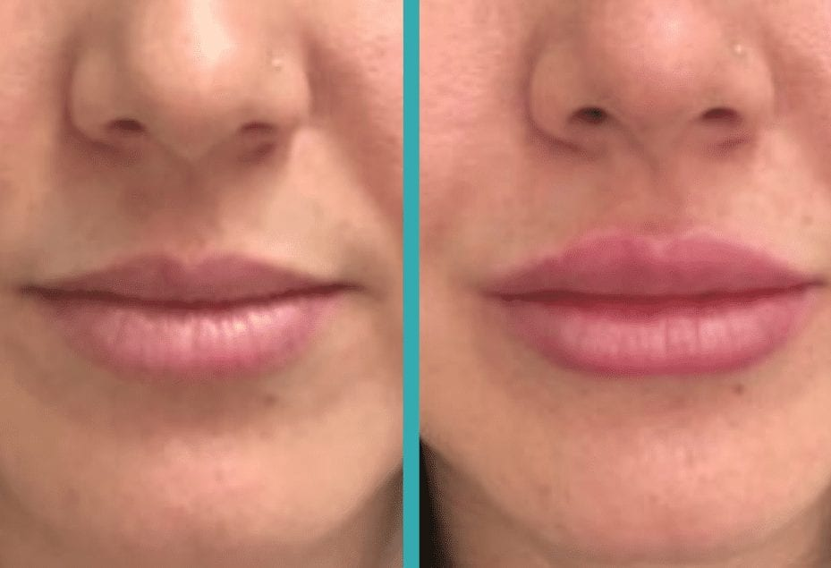 chicago lip injections