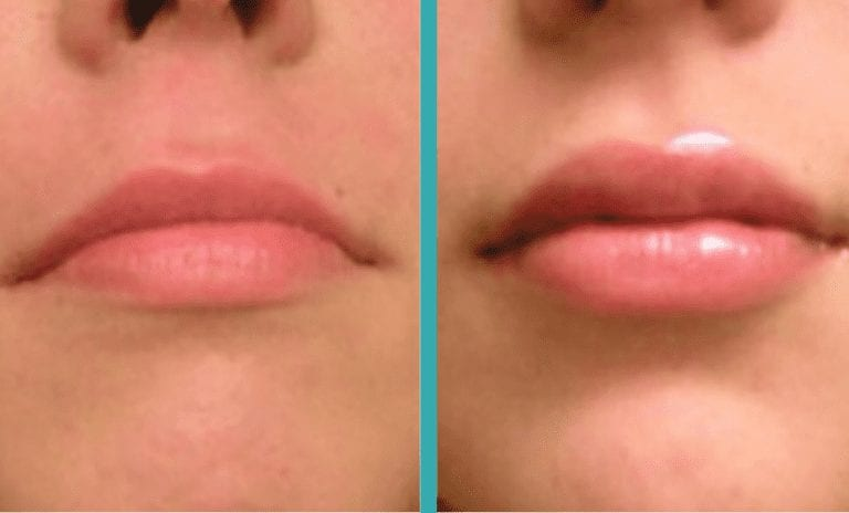 lip injections chicago