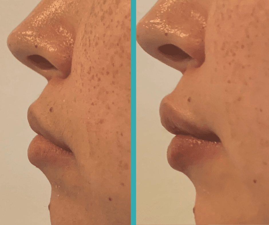 Lip Fillers Chicago-Lip injections chicago- Before and after
