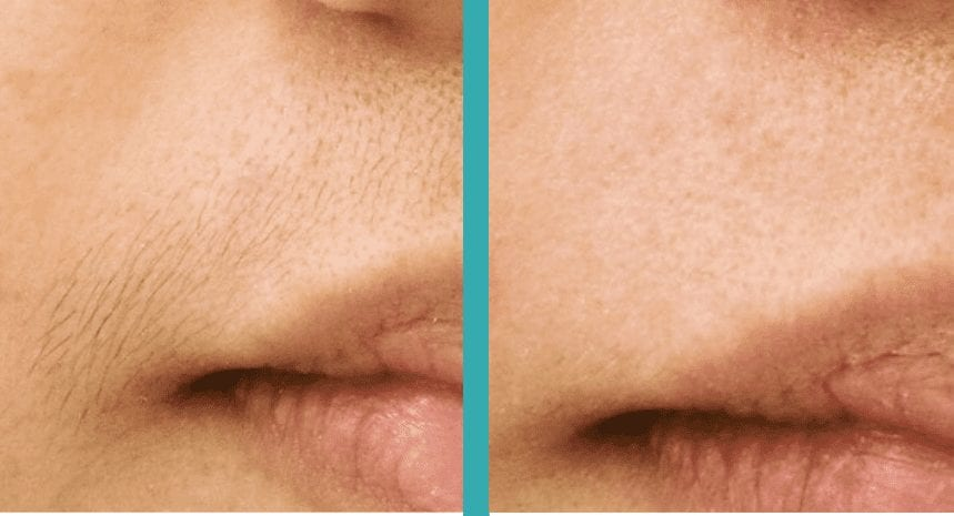 Lip laser hair removal chicago