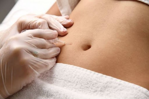 Carboxytherapy in Chicago 3