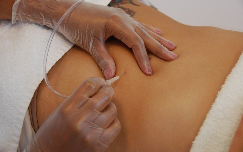 Carboxytherapy in Chicago