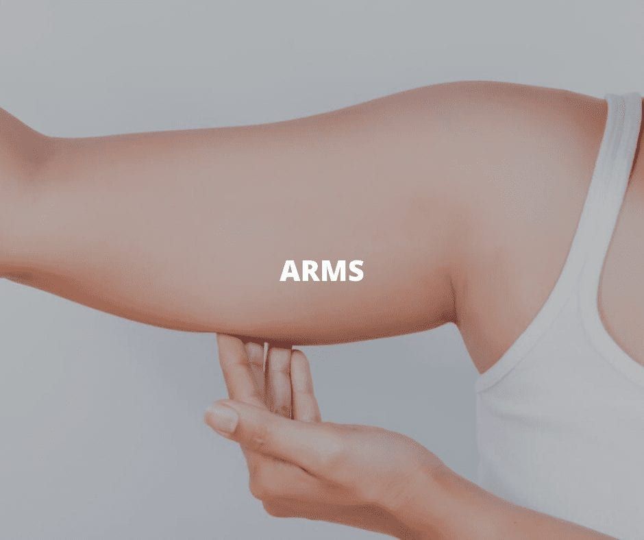 CoolSculpting Chicago-for-Arms