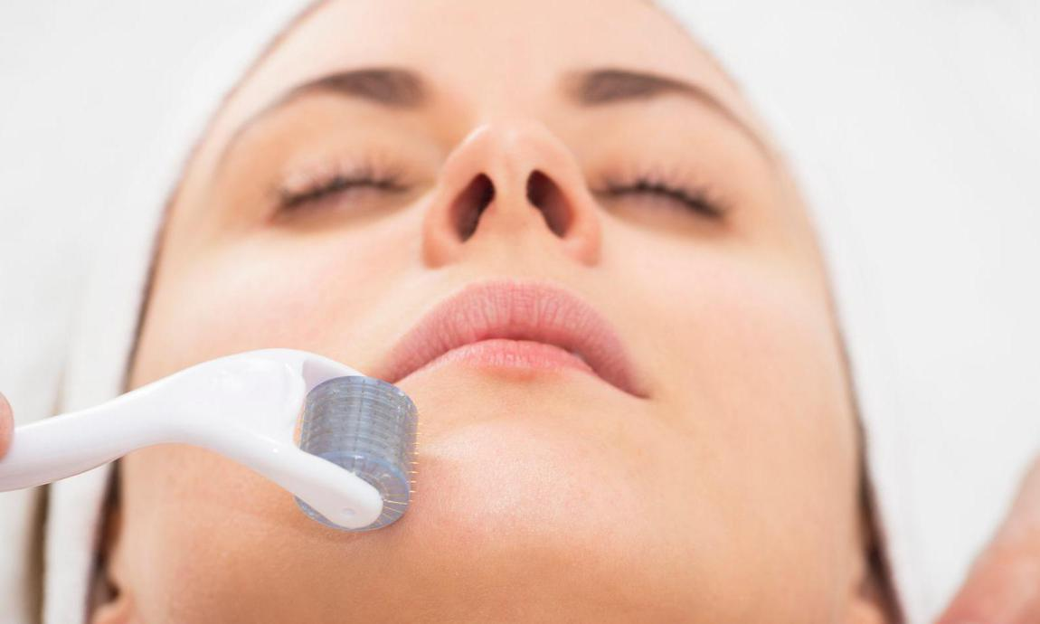Microneedling treatment chicago services 1