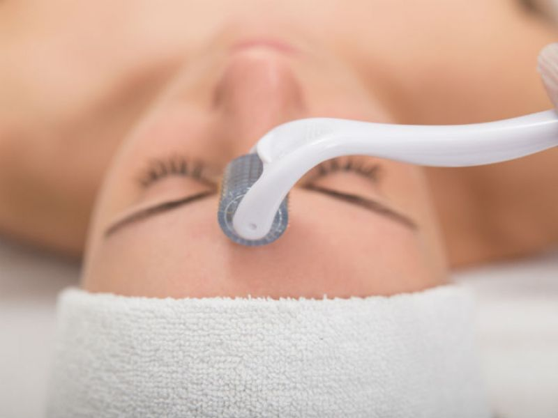 Microneedling treatment chicago services 2
