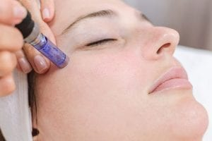 Microneedling treatment chicago services 3