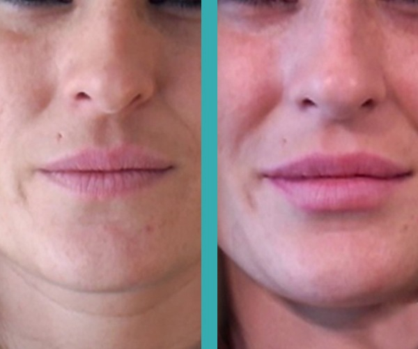 lip fillers chicago