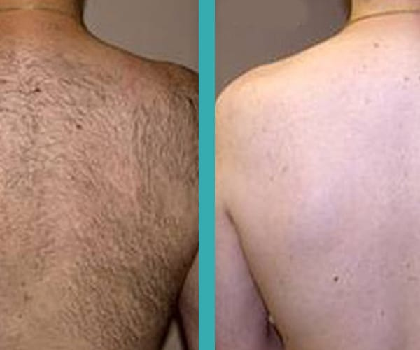 best laser hair removal chicago
