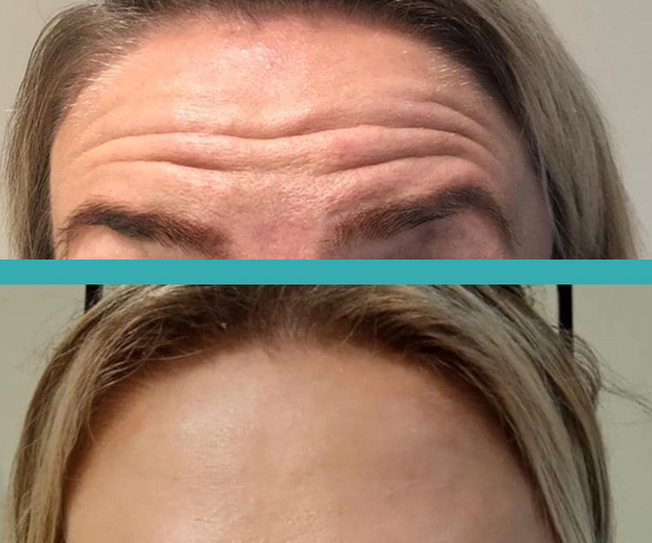 botox injections chicago