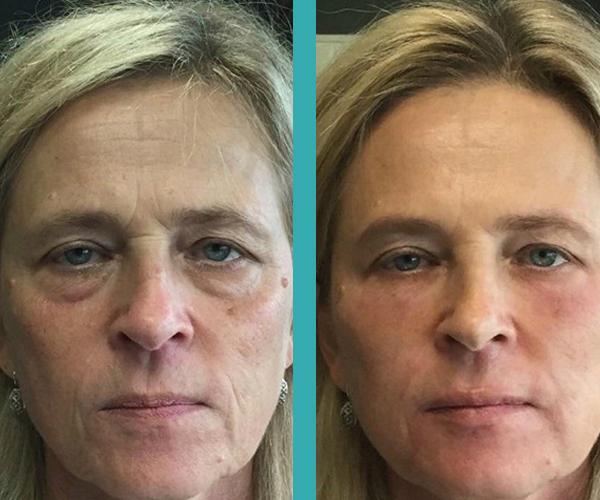 Botox Clinic chicago