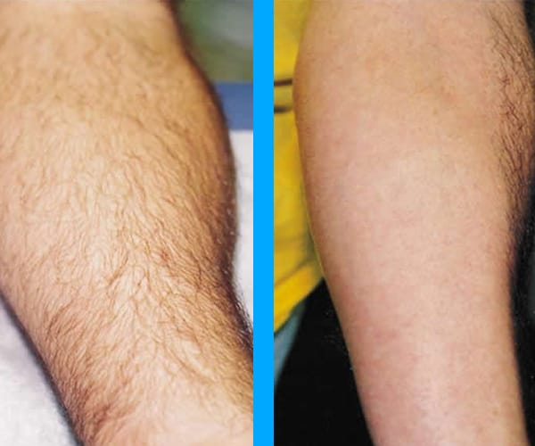 top rated laser hair removal chicago